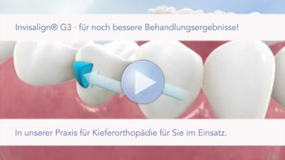 invisalign g3 deutsch Video